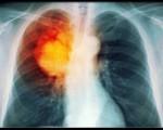 Бронхоальвеолярный (бронхиолоальвеолярный) рак легких