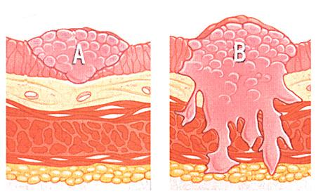 Классификация с проникновением в мышечный слой