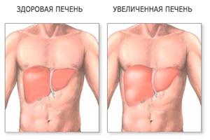 Симптомы заболевания гепатоцеллюлярного рака печени
