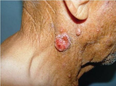 Причины рака шеи