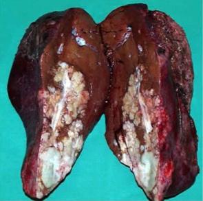 Причины рака печени