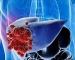 Рак печени у мужчин