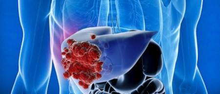 Причины рака печени у мужчин