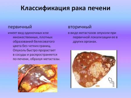 Способы классификации и виды рака печени