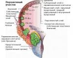 Переходно-клеточный рак мочевого пузыря