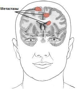 Метастазирование головного мозга