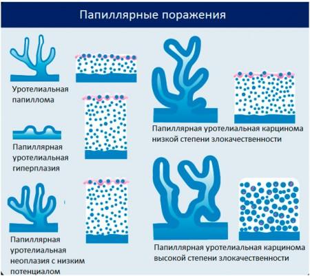 Классификация рака