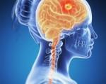 Опухоль мозга у женщин