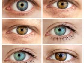 Классификация опухолей глаз