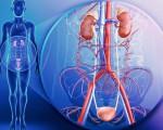 Уротелиальный рак мочевого пузыря