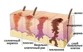 Как распознать тот или иной рак кожи представлено на фото
