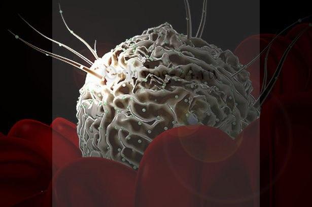 Rak kostnogo mozga, simptomy i proyavleniya