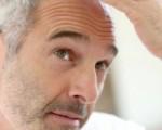 Рак кожи головы