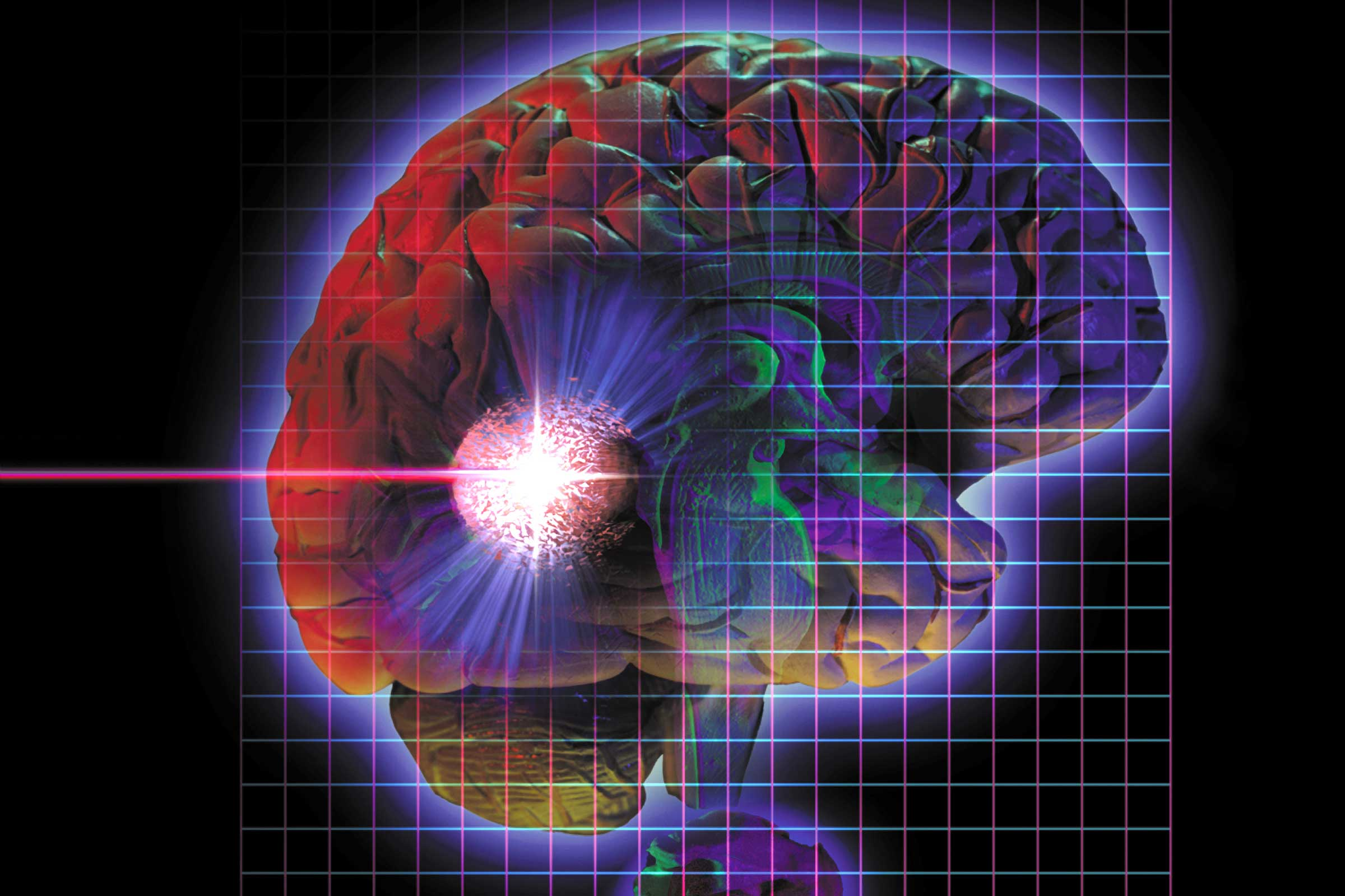 brain tumor research papers Battling brain cancer 17 oct 2016 the resulting paper was named by the clinical research forum as one of the top 10 papers in clinical and with brain tumor.