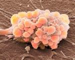 Папиллярный рак мочевого пузыря