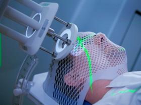 На фото представлено облучение рака глаза