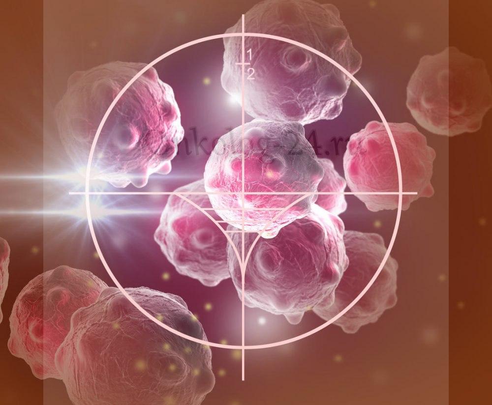 metastazy pri rake kozhi
