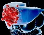 Недифференцированный рак печени
