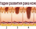 Классификация рака кожи