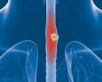 Низко, высоко, умеренно, недифференцированный рак пищевода
