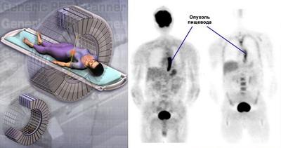 Позитронно эмиссионная томография