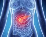 Симптомы рака поджелудочной железы у женщин