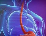 Диагностика рака пищевода