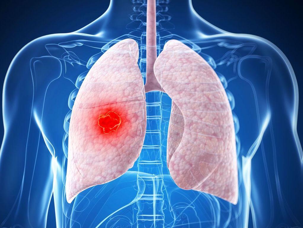 Причины возникновение онкологии в легких