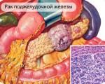 Классификация и виды рака поджелудочной железы