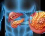 Диагностика рака поджелудочной железы: лабораторная, хирургическая, лучевая