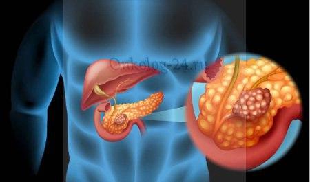 diagnostika raka podzheludochnoy zhelezy