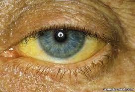 Желтуха и склер глаз при раке поджелудочной железы
