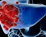 Рак поджелудочной железы у женщин
