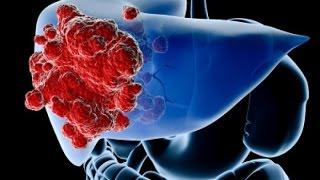 Поджелудочная железа и рак