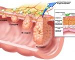 Стадии рака пищевода и степени дифференцировки