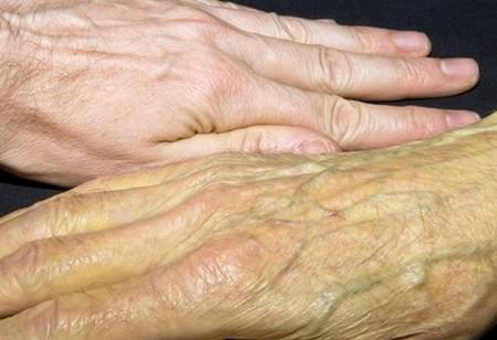 Желтушность кожи симптом рака