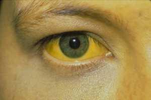 Желтушность симптом рака ПЖ и метастаз в печени