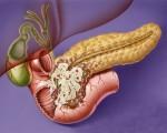 Аденокарцинома поджелудочной железы или железистый рак