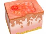 Первые признаки рака кожи