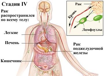 4 степень распространенности заболевания