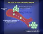 Метастазы при раке поджелудочной железы 4 стадии, сколько живут пациенты?