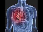 Информативное видео: Причины возникновения рака легких и первые признаки болезни. Как защитить себя от опасного недуга?