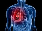 Причины возникновения рака легких