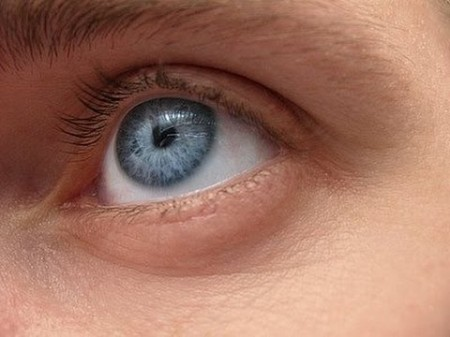Онкологическое заболевание глаз