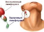 Осмотр и пальпация лимфоузлов на шее