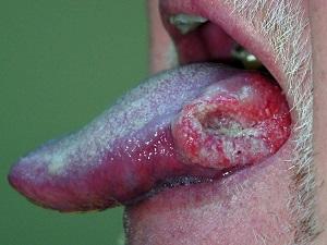 запущенный рак языка
