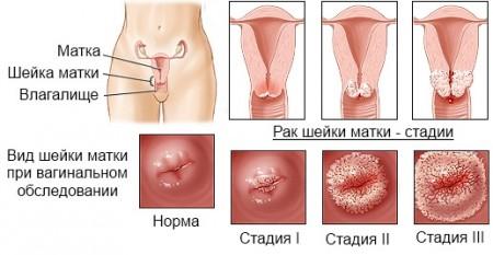 Можно ли заниматься сексом после операция по удалению рака матки