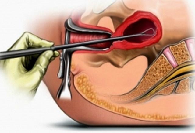 gigiena-pri-analnom-akte