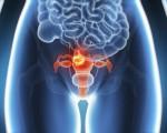 Рак шейки матки: причины, симптомы и профилактика болезни