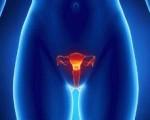 Предраковые болезни женских половых органов